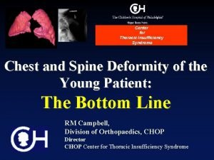 Center for Thoracic Insufficiency Syndrome Chest and Spine
