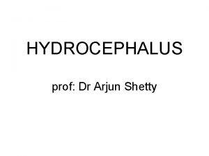 HYDROCEPHALUS prof Dr Arjun Shetty Hydrocephalus is the