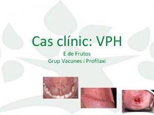 Cas clnic VPH E de Frutos Grup Vacunes