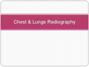 Chest Lungs Radiography Chest PA AP Lateral Obliques