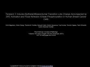 Tenascin C Induces EpithelialMesenchymal TransitionLike Change Accompanied by