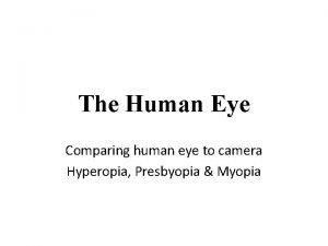 The Human Eye Comparing human eye to camera