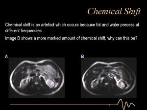 Chemical Shift Chemical shift is an artefact which
