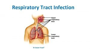 Respiratory Tract Infection Dr Suzan Yousif Infections of
