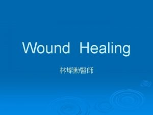 Wound Healing Tissue injury and response Wound repair