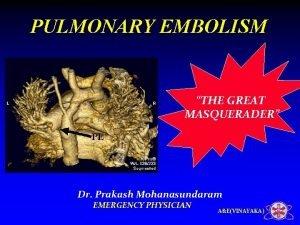 PULMONARY EMBOLISM THE GREAT MASQUERADER Dr Prakash Mohanasundaram