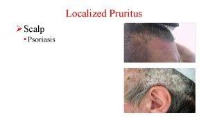 Localized Pruritus Scalp Psoriasis Localized Pruritus Scalp Psoriasis