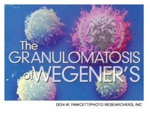 Introduccin Vasculitis sistmica necrosante y granulomatosa que afecta