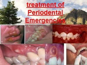 treatment of Periodental Emergencies TREATMENT OF NECROTIZING ULCERATIVE