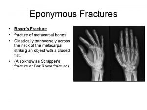 Eponymous Fractures Boxers Fracture fracture of metacarpal bones
