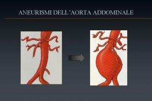 ANEURISMI DELLAORTA ADDOMINALE Aneurismi dellaorta addominale Definizione Epidemiologia
