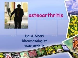 osteoarthritis Dr A Noori Rheumatologist www arrh ir