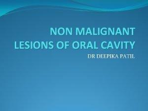 NON MALIGNANT LESIONS OF ORAL CAVITY DR DEEPIKA