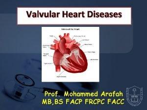 Valvular Heart Diseases Prof Mohammed Arafah MB BS