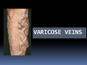 VARICOSE VEINS DEFINITION When a vein becomes dilated