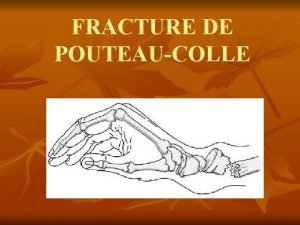FRACTURE DE POUTEAUCOLLE FRACTURE DE POUTEAUCOLLE 1 Dfinition