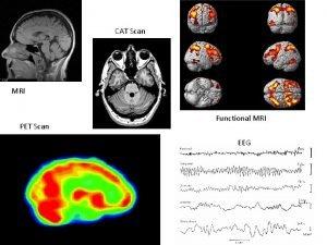 CAT Scan MRI PET Scan Functional MRI EEG