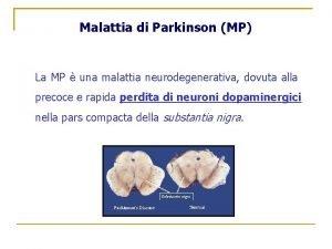 Malattia di Parkinson MP La MP una malattia