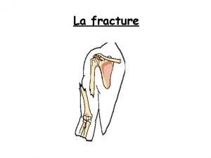 La fracture Sommaire 1 Dfinition 2 Causes 3