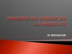 IMAGERIE DU CANCER DE LA PROSTATE Dr BNOUACHIR