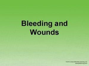 Bleeding and Wounds External Bleeding 1 of 2
