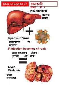What will happen in Liver Cirrhosis Healthy liver