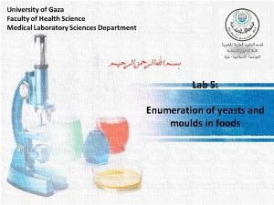 Lab 5 Enumeration of yeasts and moulds in