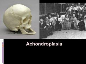 Achondroplasia Achondroplasia Achondroplasia is a disorder of bone