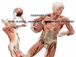 FISIOPATOLOGIA TEMA ALERGIA ANAFILAXIA ENFERMEDAD DEL SUERO Alergia
