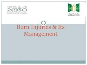 Burn Injuries Its Management BURNS Wounds caused by