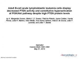 Adult Bcell acute lymphoblastic leukemia cells display decreased