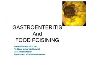 GASTROENTERITIS And FOOD POISINING Meral SNMEZOLU MD Yeditepe