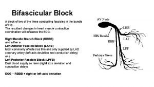 Bifascicular Block A block of two of the