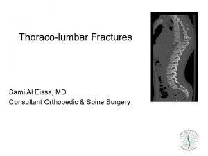 Thoracolumbar Fractures Sami Al Eissa MD Consultant Orthopedic
