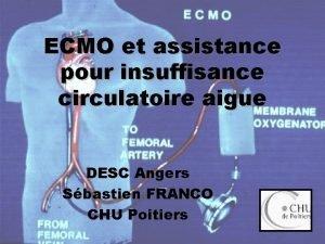 ECMO et assistance pour insuffisance circulatoire aigue DESC