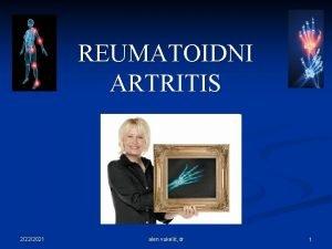 REUMATOIDNI ARTRITIS 2222021 alen vukeli dr 1 2222021