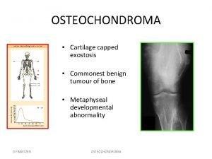 OSTEOCHONDROMA Cartilage capped exostosis Commonest benign tumour of