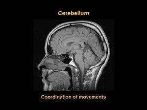 Cerebellum Coordination of movements Vermis Hemispheres Folia lobuli