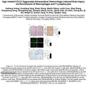 Agerelated CCL 12 Aggravates Intracerebral Hemorrhageinduced Brain Injury