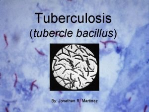 Tuberculosis tubercle bacillus By Jonathan R Martinez Tuberculosis