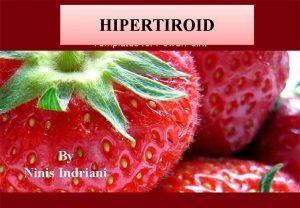 HIPERTIROID By Ninis Indriani PENDAHULUAN Sebagian besar hipertiroid