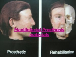 Maxillofacial Prosthesis materials Introduction Classification of materials used