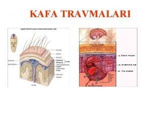 KAFA TRAVMALARI KAFA TRAVMASININ MEKANZMALARI 1 Akselerasyon yaralanmas