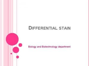 DIFFERENTIAL STAIN Biology and Biotechnology department Differential stain