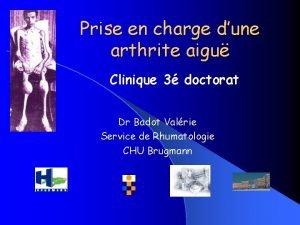 Prise en charge dune arthrite aigu Clinique 3