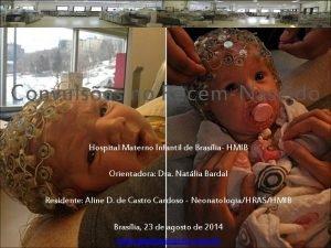 Convulses no RecmNascido Hospital Materno Infantil de Braslia