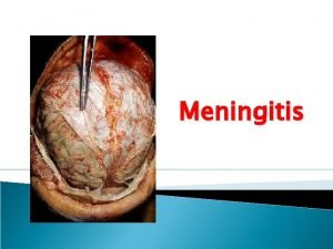 Meningitis OBJECTIVES Students should Specify microorganisms causing meningitis