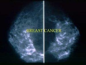 BREAST CANCER 1 Breast Cancer Breast cancer occurs