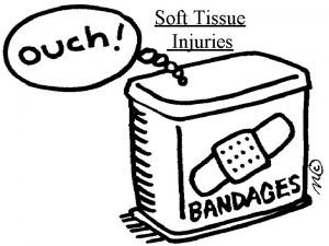 Soft Tissue Injuries What are Soft Tissues Soft