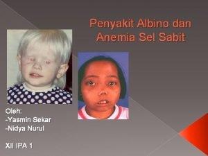 Penyakit Albino dan Anemia Sel Sabit Oleh Yasmin